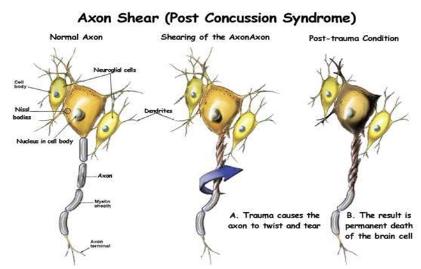 Axon Shear - TBI images